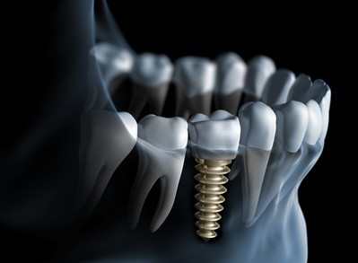 Dentistas en Castellón - Los implantes, una manera práctica de recuperar la dentadura