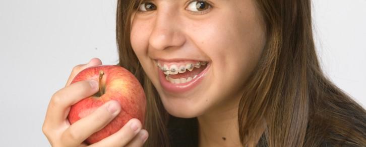 Dentistas en Castellón - La manzana, un alimento que nos ayuda a mantener limpios los dientes