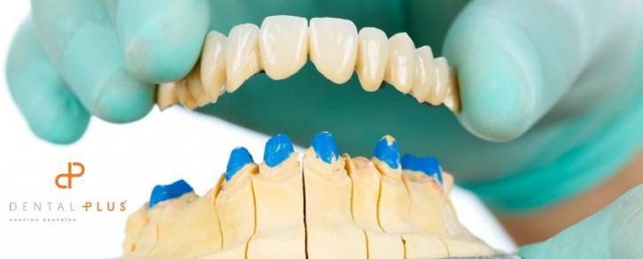 Dentistas en Castellón - El cuidado en la boca, también cuando eres mayor