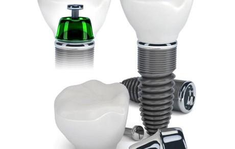Dentistas en Castellón - Los orígenes de la implantología y su actualidad