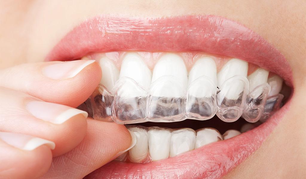 ortodoncia invisible en Castellón