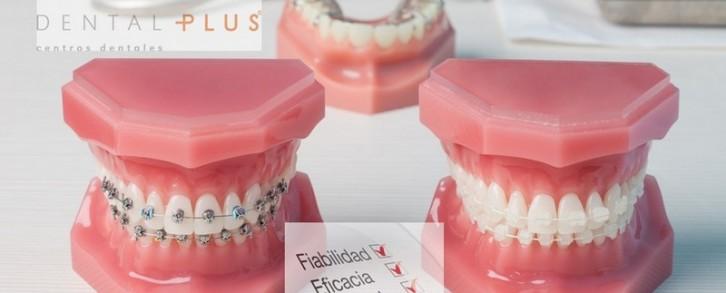 Dentistas en Castellón - La ortodoncia invisible, una solución efectiva y discreta