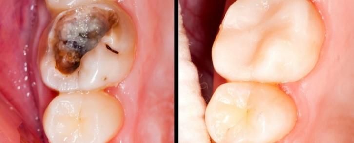 Dentistas en Castellón - Caries, el temido enemigo de la salud dental