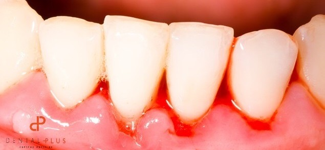 Dentistas en Castellón - Encías sangrantes, una señal de peligro que hay que vigilar y tratar