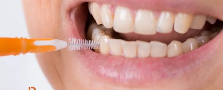 Dentistas en Castellón - El espacio interdental, un hueco por donde se cuela la suciedad