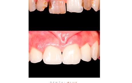 Dentistas en Castellón - Reconstrucción de piezas dentales y cuidado de los dientes
