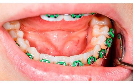 Dentistas en Castellón - La ortodoncia no tiene edad y puede ponerse en cualquier momento