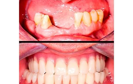Dentistas en Castellón - La rehabilitación oral, un paso más allá de la reconstrucción de los dientes