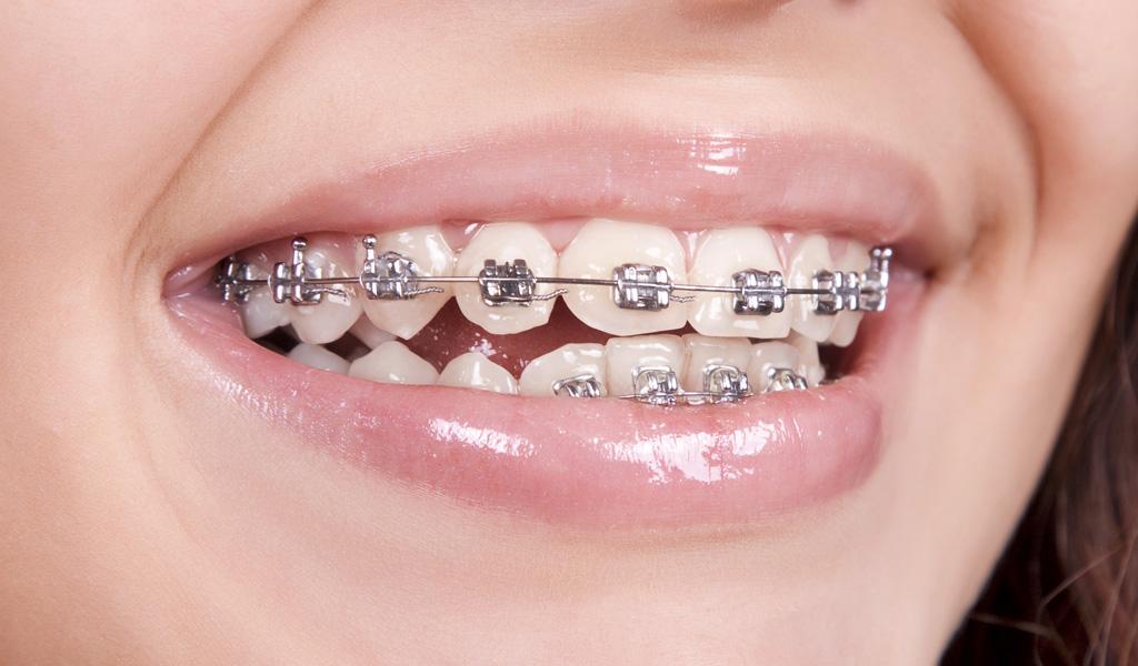 ortodoncia convencional en Castellón