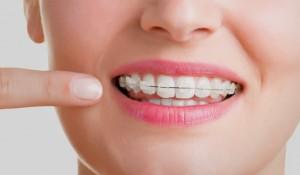 ortodoncia estética en Castellón