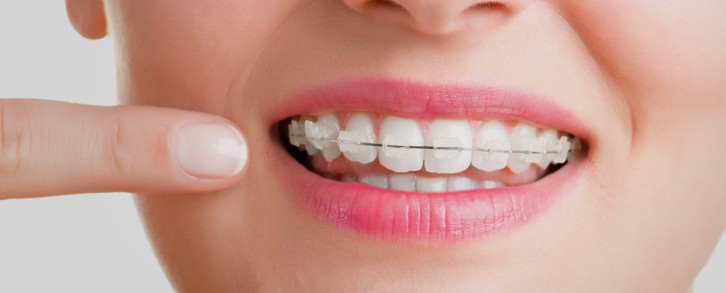 Dentistas en Castellón - Ortodoncia en Castellón de máxima calidad