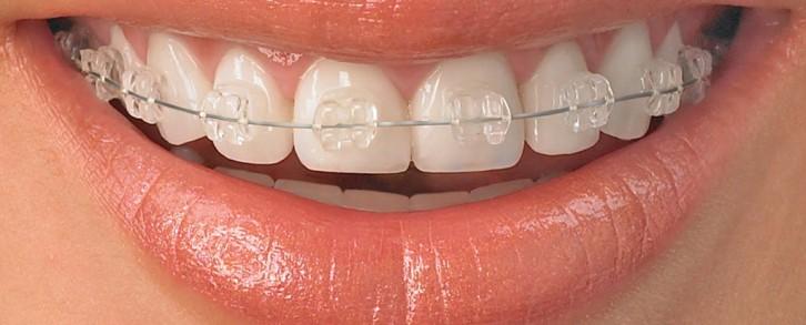 Dentistas en Castellón - Todas las soluciones de ortodoncia en Castellón