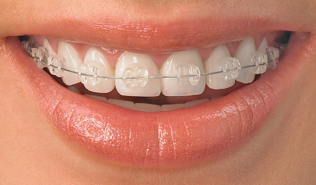 ortodoncia en Castellón