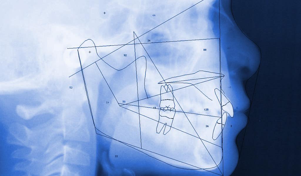 ortodoncia estudio previo en Castellón