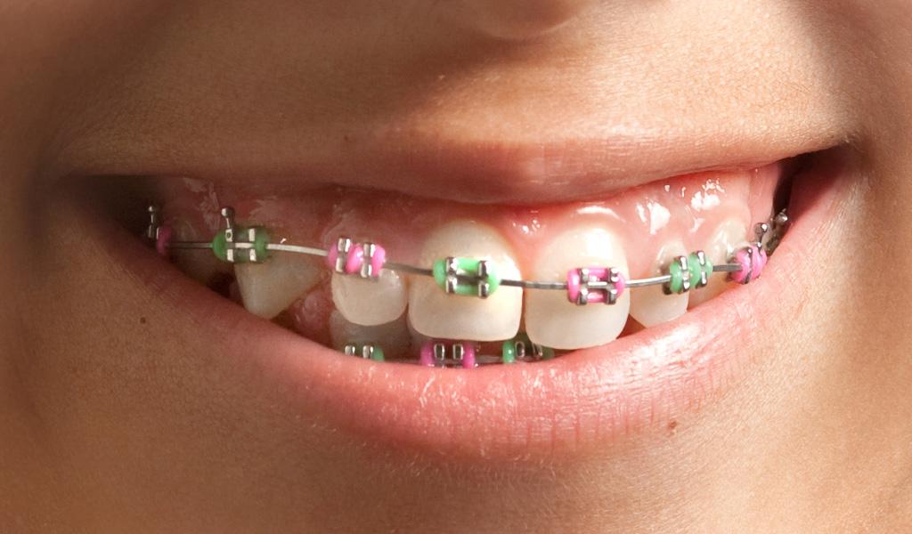 ortodoncia infantil en Castellón