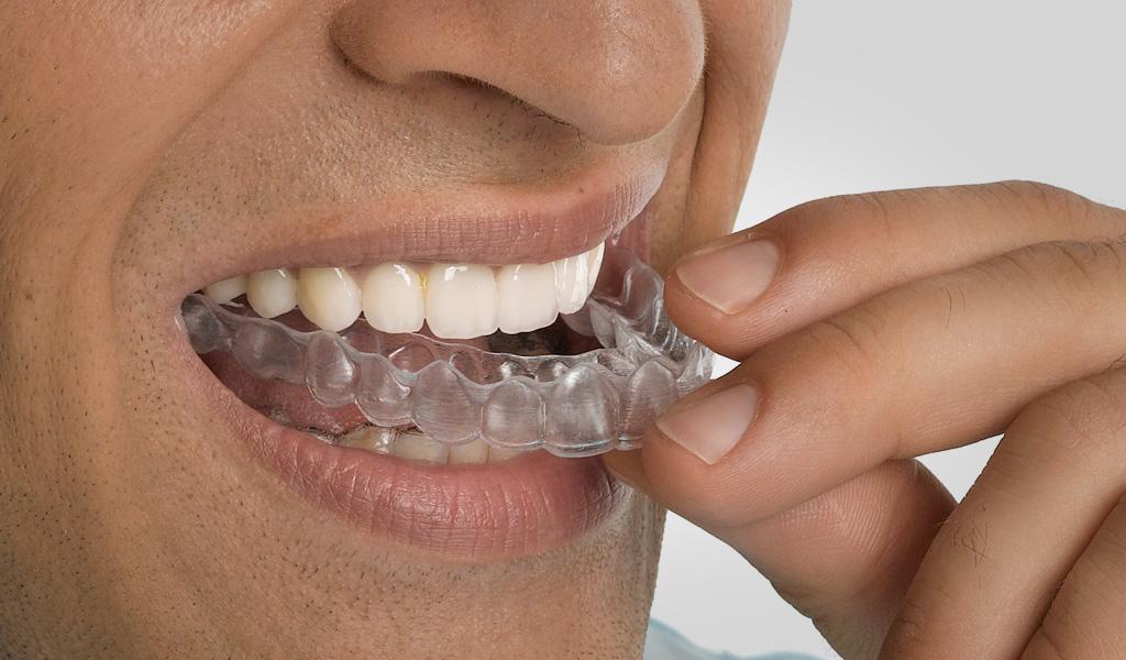 ortodoncia invisalign en Castellón