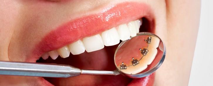 Dentistas en Castellón - Ortodoncia lingual, una solución estética a la ortodoncia tradicional