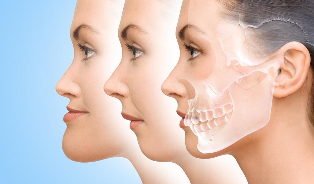ortodoncia ortognática en Castellón