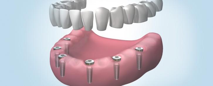 Dentistas en Castellón - Su prótesis fija colocada en un solo día