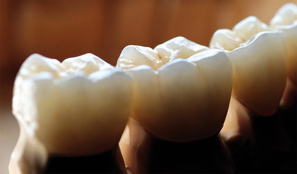 estética dental Castellón