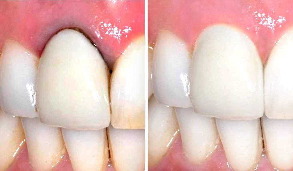 estética dental en Castellón