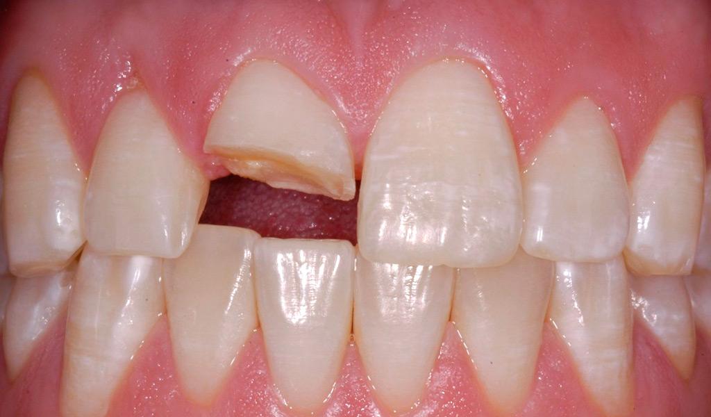 Dentistas de urgencias en Castellón