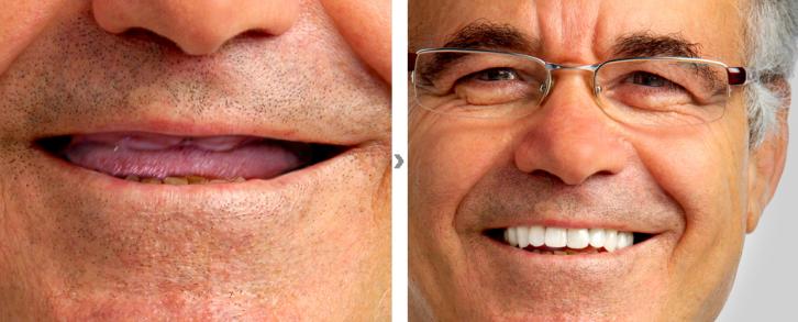 Dentistas en Castellón - Lo último en dentadura fijada con implantes dentales en Castellón