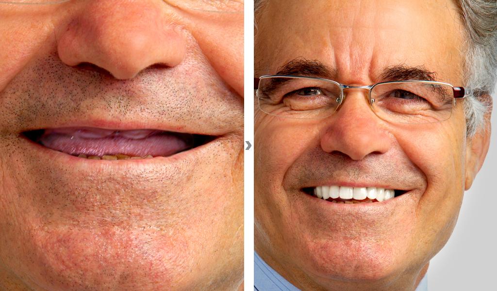 dentadura fijada con implantes dentales en Castellón
