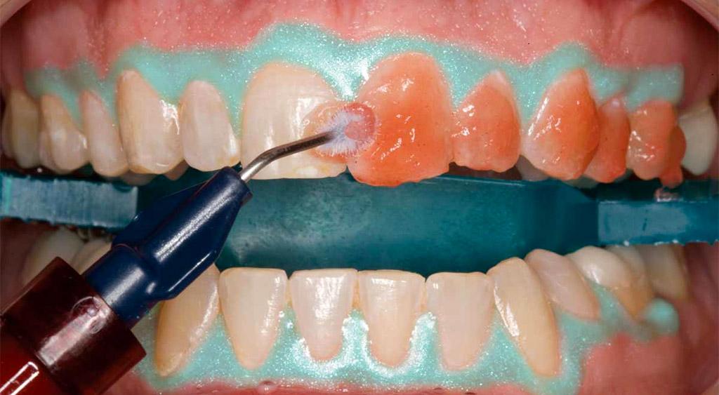 blanqueamiento dental en Castellón