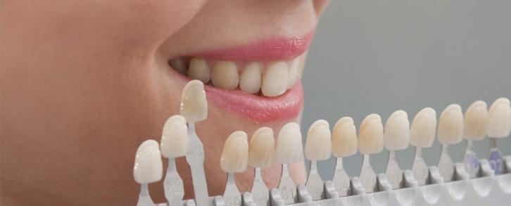 Dentistas en Castellón - Preguntas frecuentes sobre blanqueamiento dental en Castellón