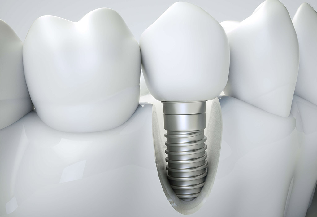 Implantología dental en Castellón