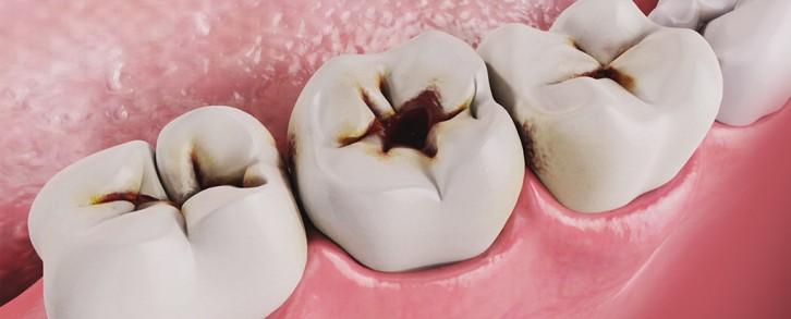 Dentistas en Castellón - Prevención de caries en Castellón