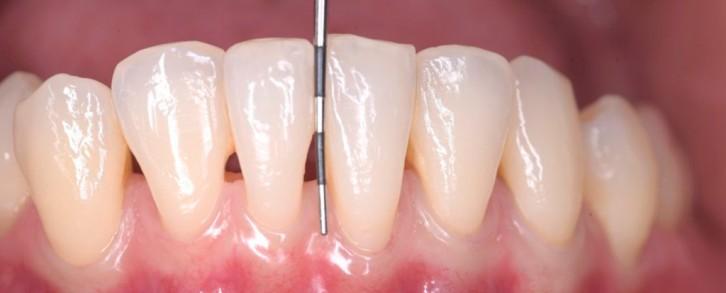 Dentistas en Castellón - Problemas de encías en Castellón