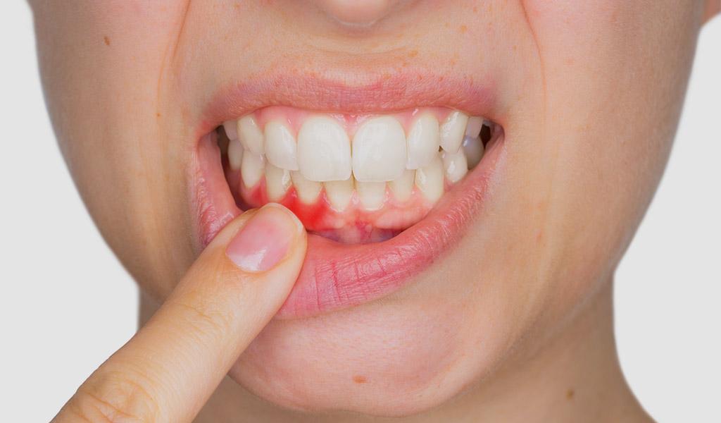 urgencias dentales en Castellón