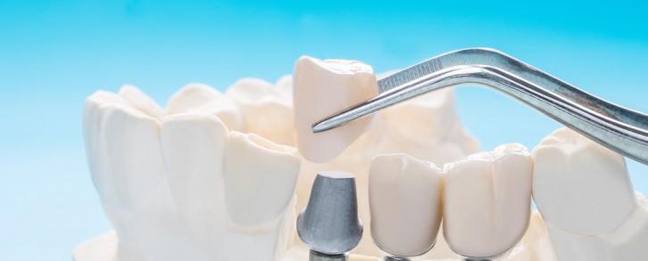 Dentistas en Castellón - Colocación de implantes dentales en Castellón