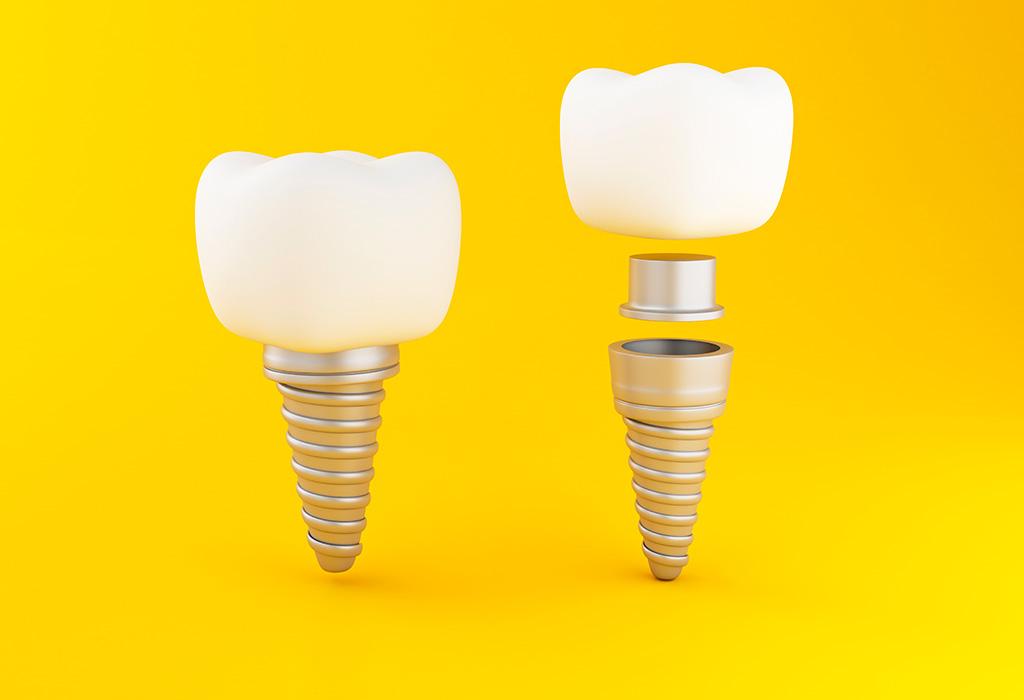 Colocación de implantes dentales en Castellón