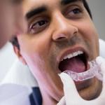 Ortodoncista en Castellón
