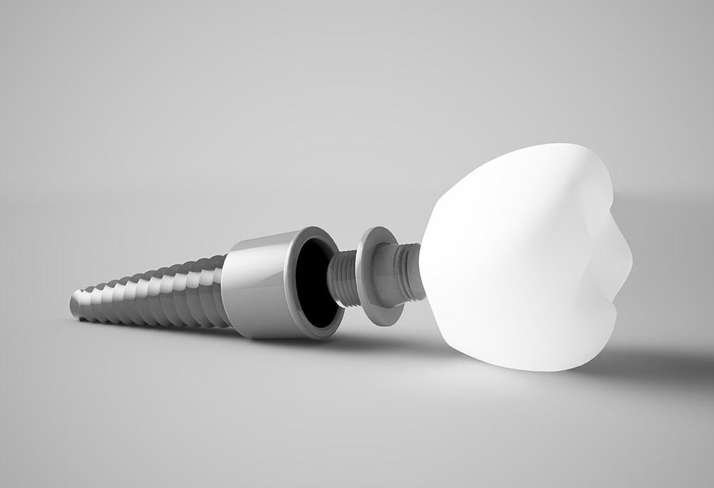 Implantes dentales de carga inmediata en Castellón