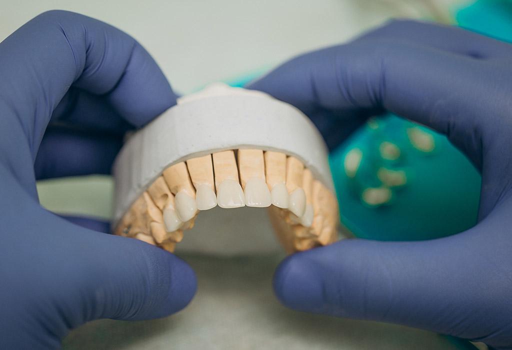 Carillas dentales en Castellón